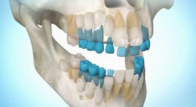 მეცნიერების ამ ახალმა აღმოჩენამ მთელი მედიცინა თავდაყირა დააყენა - ახლა უკვე შესაძლებელია დაკარგული კბილები 50 წლის ასაკშიც კი ამოგივიდეთ!
