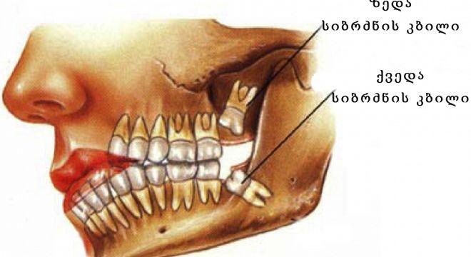 იცით  რატომ  არ  შეიძლება  სიბრძნის  კბილის  ამოღება?!
